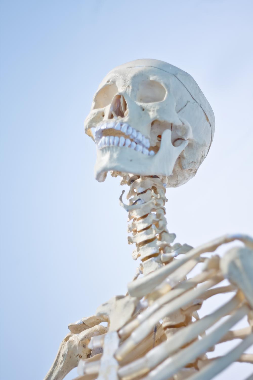 非薬物療法 第6回:食事でカルシウムを摂ると骨折は防げますか?
