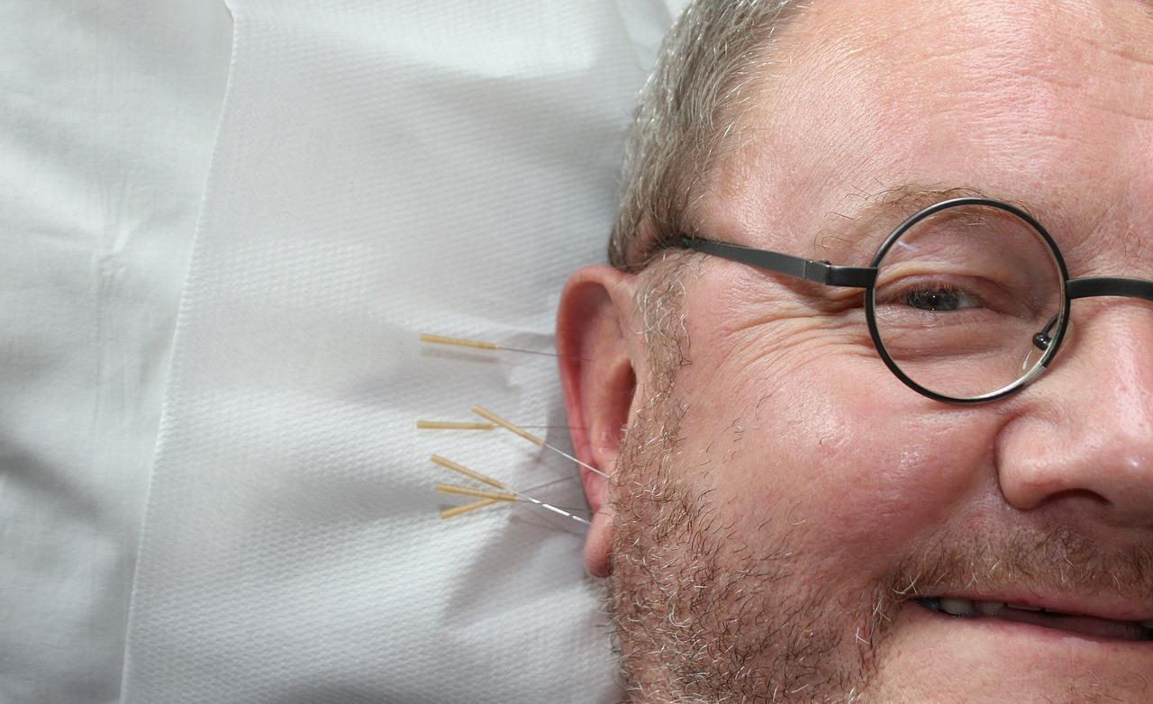 非薬物療法 第12回:鍼治療は片頭痛に効果がありますか?